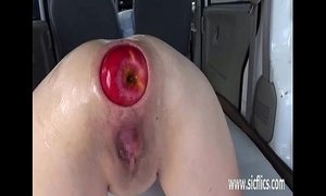 anal extreme fisting weird